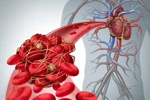 NOACs superior to vitamin K antagonists in early stage CKD