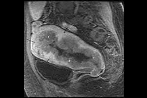 Updated ESUR guideline on MRI staging of endometrial cancer