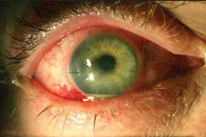 No role of Prophylactic antibiotics in endophthalmitis prevention after Intravitreal Injection