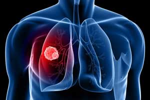 CT lung cancer screening useful and cost effective even in elderly, finds study