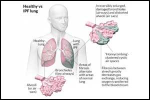 Metformin Reverses Established Lung Fibrosis
