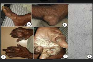 A rare case of Hyperuricemia presenting  with white powder oozing from body