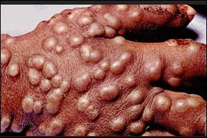 First effective drug for treatment of smallpox approved