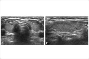 Real-time sonography differentiates diffuse thyroid disease from normal thyroid parenchyma