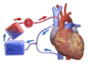 Intraoperative Autologous blood  transfusion benefits children in  cardiac surgeries