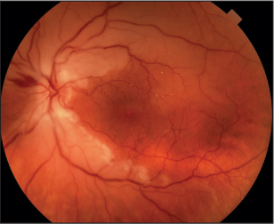 Central retinal artery occlusion patients at increased Stroke risk