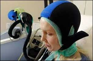 New method  reduces risk of chemotherapy related hair loss