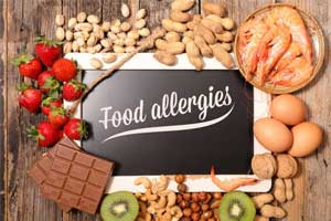 Omalizumab good at preventing food allergies after accidental exposure