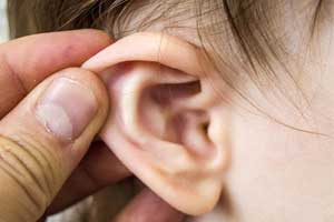 Short course of steroids prevents hearing loss in kids due to otitis media