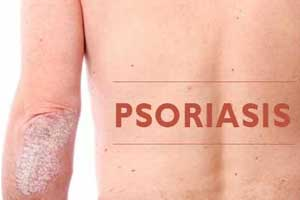 Psoriasis increases risk for type 2 diabetes, finds study