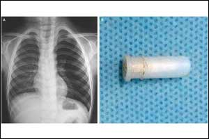 AIIMS doctors report an unusual case of Whistling Cough