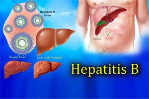 A new antiviral drug for treating Hepatitis B on fast track