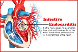 Switching to oral antibiotics halves hospital stay in endocarditis : ESC Update