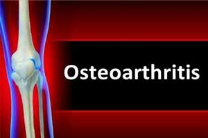 Novel treatment may stop progression of osteoarthritis