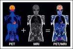 Current Scenario of Hybrid PET-MRI of the Heart