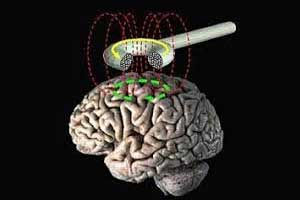 Transcranial magnetic stimulation may be new treatment of OCD