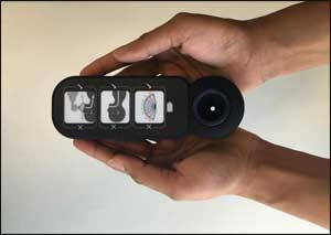 Innovative resuscitator device reduces neonatal mortality