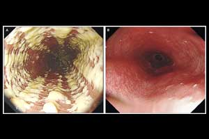 A case of odynophagia due to candida esophagitis
