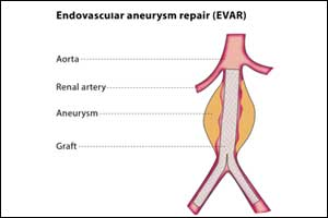 Endovascular aortic repair better than open repair for ruptured abdominal aortic aneurysms
