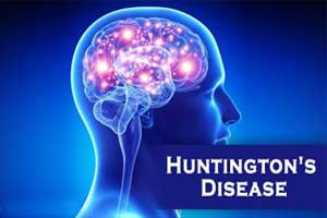 Ground breaking treatment of Huntingtons disease discovered