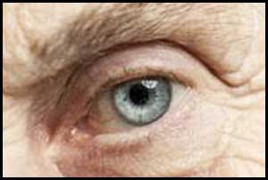 Statin use associated with decreased risk of glaucoma: JAMA Ophthalmology