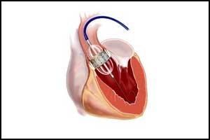 In Aortic Stenosis TAVR leads to significantly shorter hospital stay than SAVR