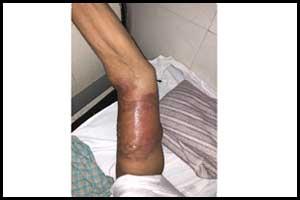 A case of Delayed pressure urticaria due to BP Cuff
