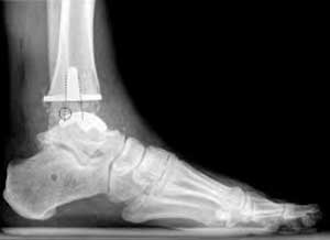 Total ankle arthroplasty offers patients greater range of motion and less pain