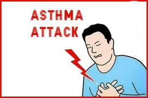 Mepolizumab significantly reduces exacerbation in Severe Eosinophilic Asthma
