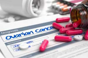 Statins lower ovarian cancer risk in women over 50