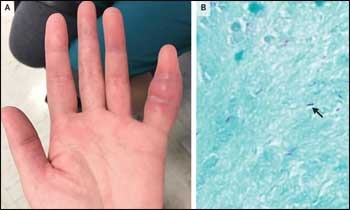 A unique case of Tuberculosis of the Finger: NEJM
