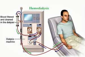 Hemodialysis may adversely affect vision of Kidney Failure patients