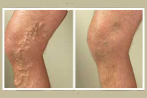 Taller you are more are chances of developing Varicose veins