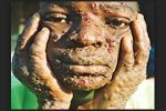 UK's First ever case of Monkeypox identified