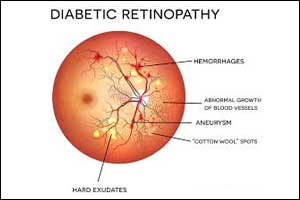 AI instantly diagnoses diabetic retinopathy, saves sight