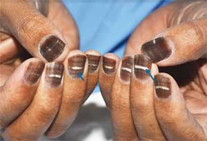 A case of  brown and striped nails after chemotherapy