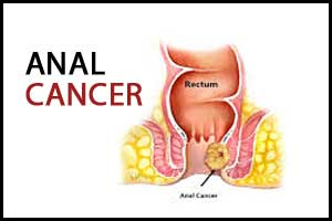 New treatment approach for advanced anal cancer