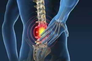 Noninvasive Treatments of low back pain:  ACP Guideline