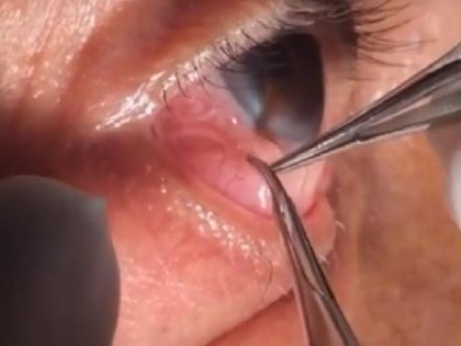 Intraocular filariasis -Indian doctor pulls out 15 cm long worm from eye