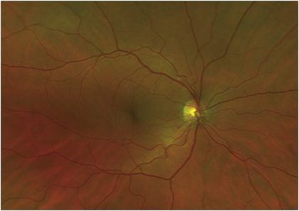 Rare case of Preretinal haemorrhage following Chiropracty