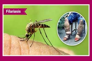 Triple-Drug Therapy more effective in lymphatic filariasis: NEJM
