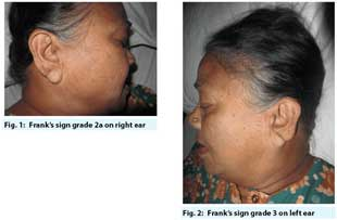 Frank's Sign in a patient of Diabetes and hypertension