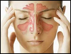 Functional nasal surgery improves chronic headache in 85 percent patients