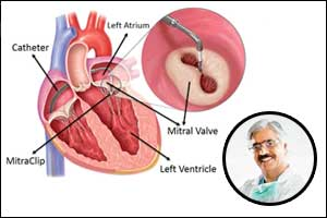 First In India: Fortis Doctors perform Heart valve repair without open heart surgery