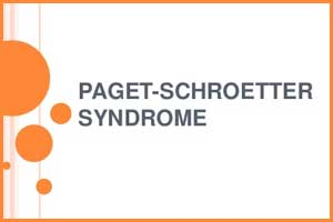 Case of Paget-Schroetter syndrome