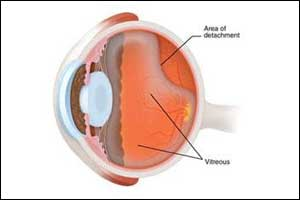 Pneumatic retinopexy offers better results in retinal detachment