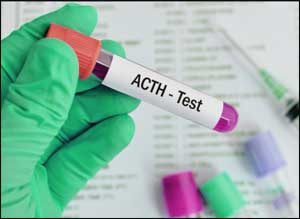 Delhi doctors report rare cases of ACTH resistance syndrome