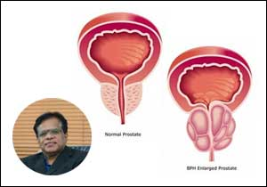 Urinary obstruction: A disease of elderly men
