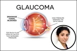Glaucoma -The sneak thief of vision!