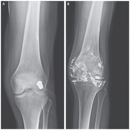 Case of Knee Arthritis due to embedded bullet for over decade